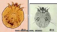 人皮里产卵 繁殖 一口气吸进几千万只 螨虫到底多可怕?